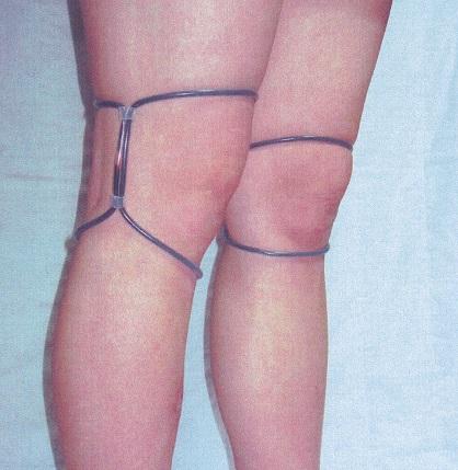 ひざ用シリコン製リング アジャスタ付き装着例