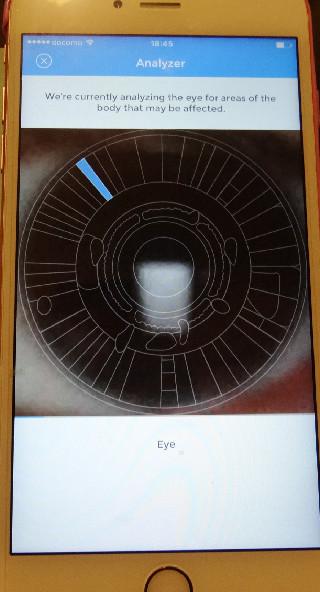 目の写真で診断します